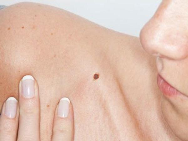 Xem bói nốt ruồi trên cơ thể phụ nữ
